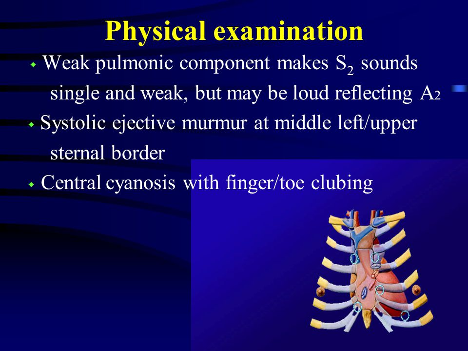 Physical examination ◆ Weak pulmonic component makes S 2 sounds single and weak, but may be loud reflecting A 2 ◆ Systolic ejective murmur at middle left/upper sternal border ◆ Central cyanosis with finger/toe clubing