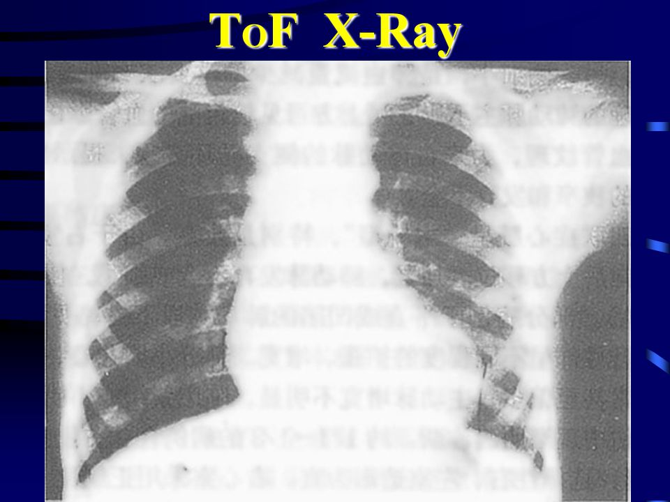 T O F X-Ray