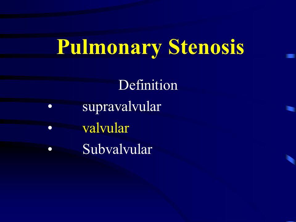 Pulmonary Stenosis Definition supravalvular valvular Subvalvular