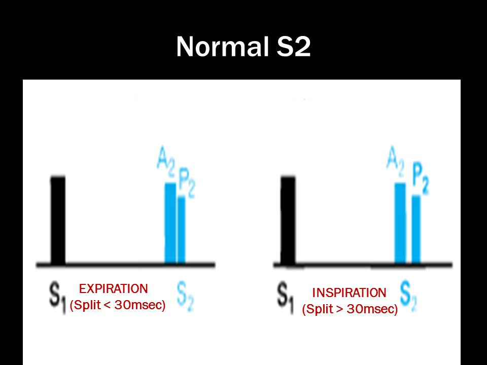 Normal S2 EXPIRATION (Split < 30msec) INSPIRATION (Split > 30msec)
