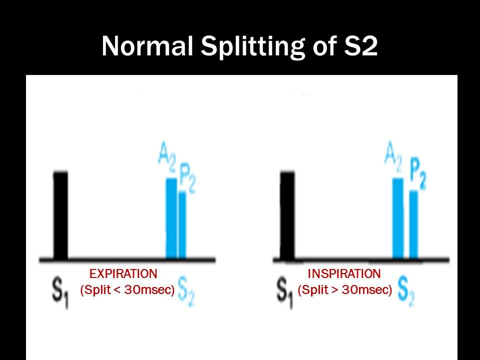 Normal Splitting of S2 EXPIRATION (Split < 30msec) INSPIRATION (Split > 30msec)
