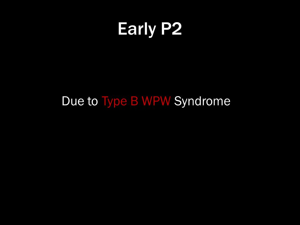 Early P2 Due to Type B WPW Syndrome