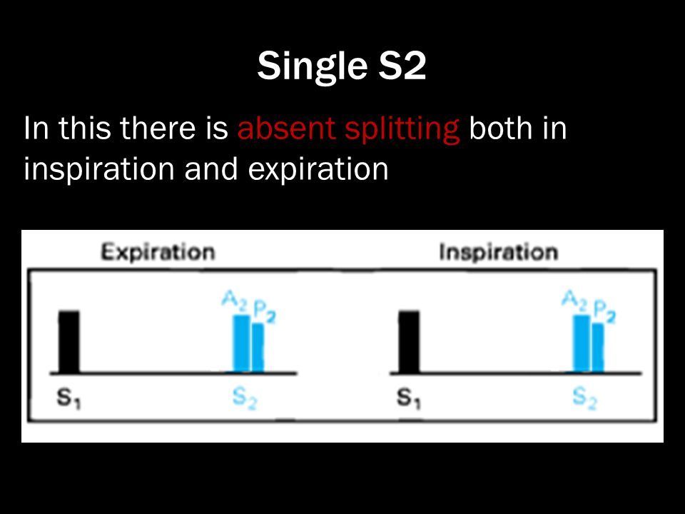 In this there is absent splitting both in inspiration and expiration