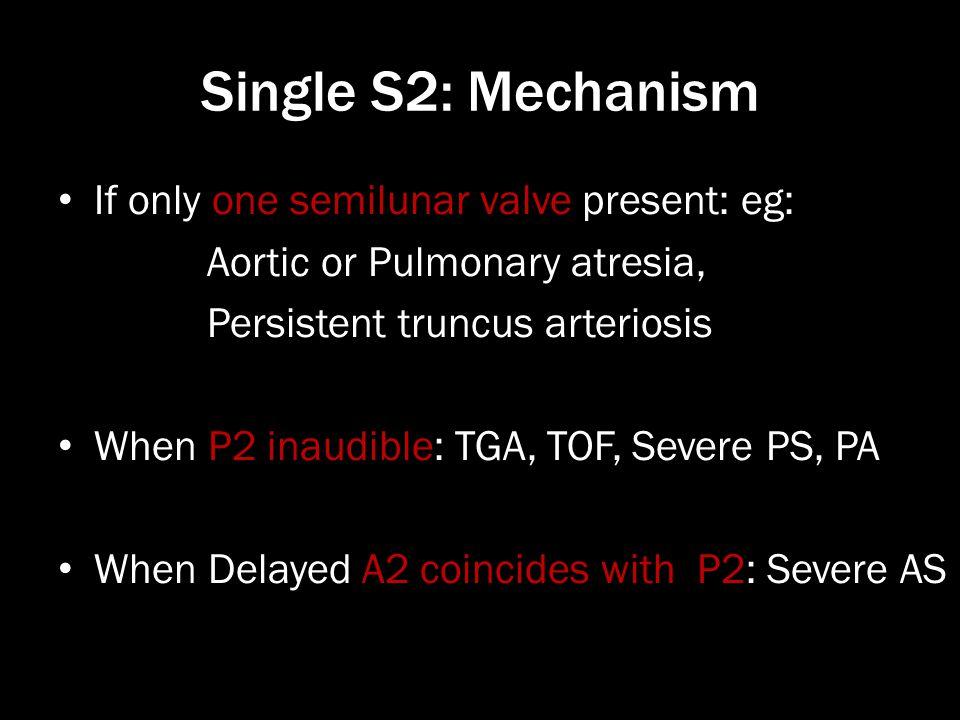 Single S2: Mechanism If only one semilunar valve present: eg: Aortic or Pulmonary atresia, Persistent truncus arteriosis When P2 inaudible: TGA, TOF,
