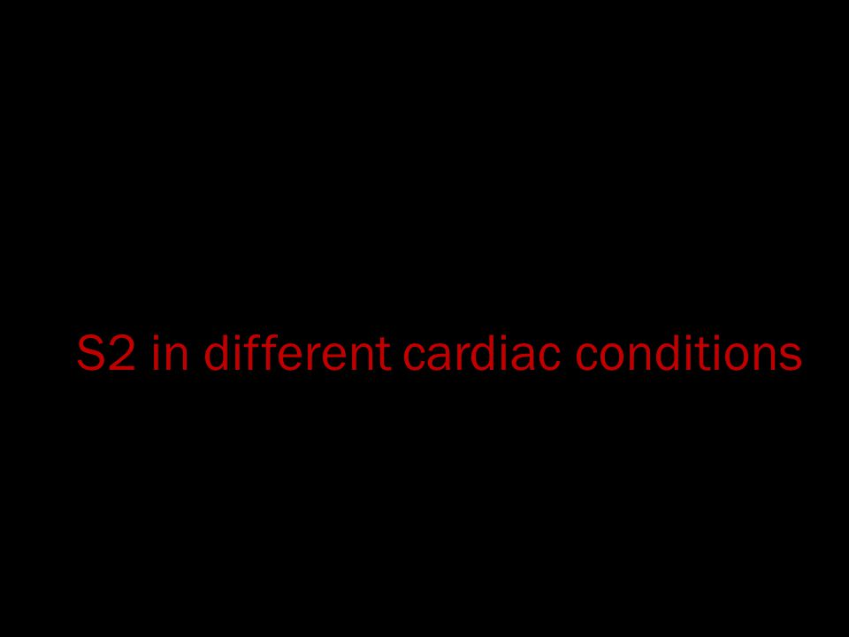 S2 in different cardiac conditions