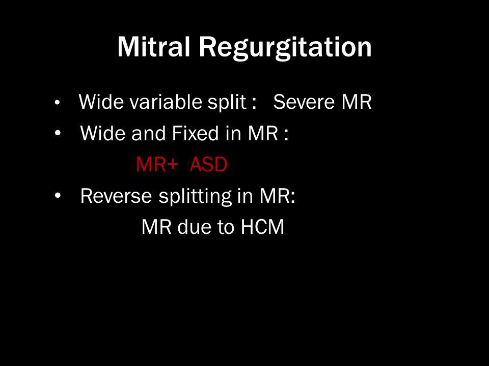 Mitral Regurgitation Wide variable split : Severe MR Wide and Fixed in MR : MR+ ASD Reverse splitting in MR: MR due to HCM
