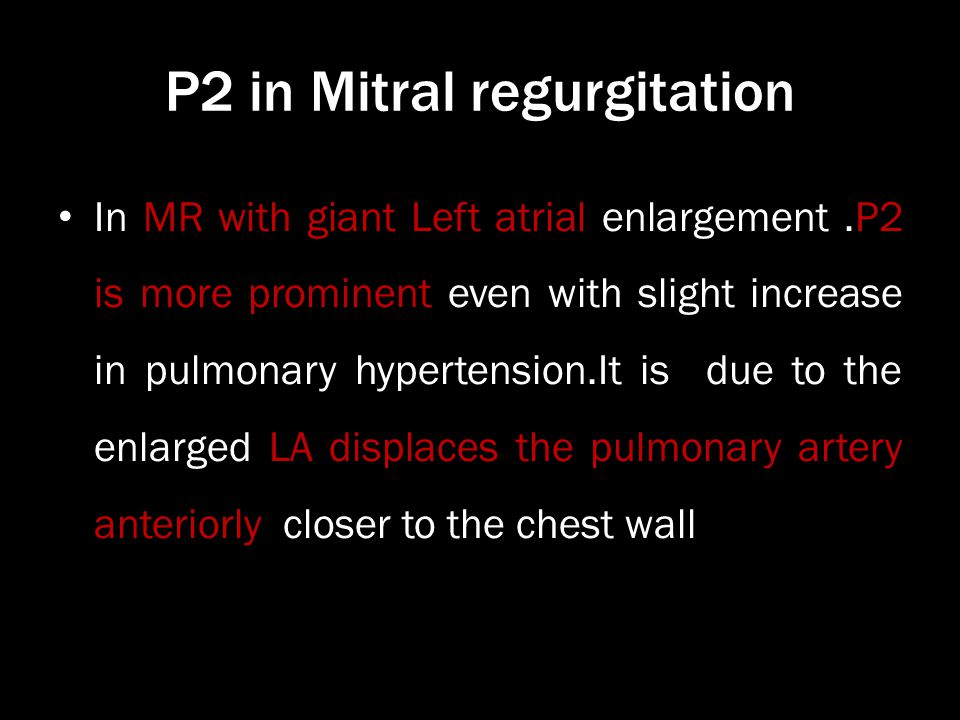 P2 in Mitral regurgitation In MR with giant Left atrial enlargement.P2 is more prominent even with slight increase in pulmonary hypertension.It is due