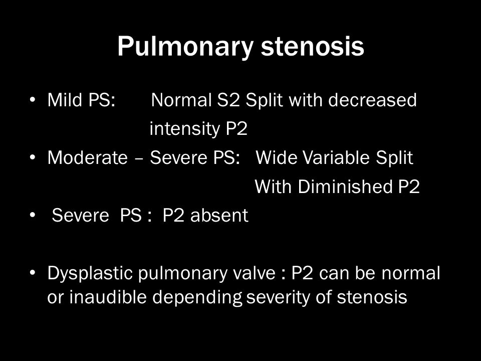 Pulmonary stenosis Mild PS: Normal S2 Split with decreased intensity P2 Moderate – Severe PS: Wide Variable Split With Diminished P2 Severe PS : P2 ab