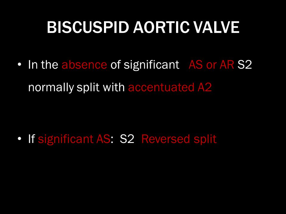 BISCUSPID AORTIC VALVE In the absence of significant AS or AR S2 normally split with accentuated A2 If significant AS: S2 Reversed split