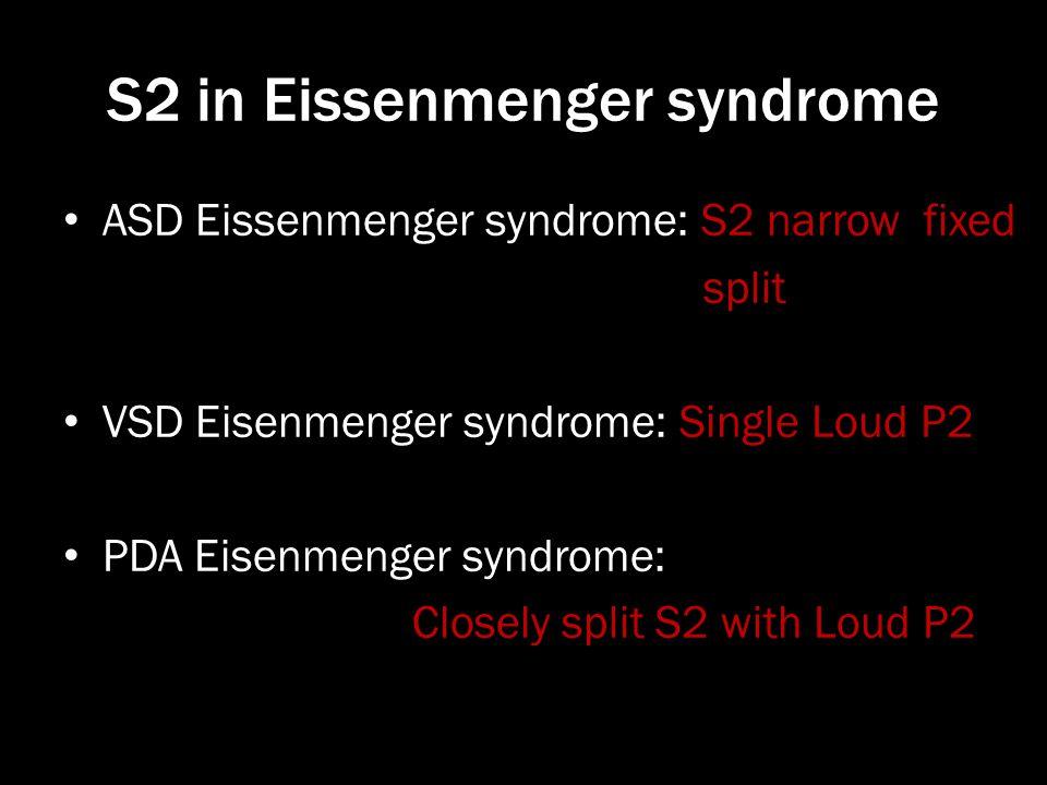 S2 in Eissenmenger syndrome ASD Eissenmenger syndrome: S2 narrow fixed split VSD Eisenmenger syndrome: Single Loud P2 PDA Eisenmenger syndrome: Closel