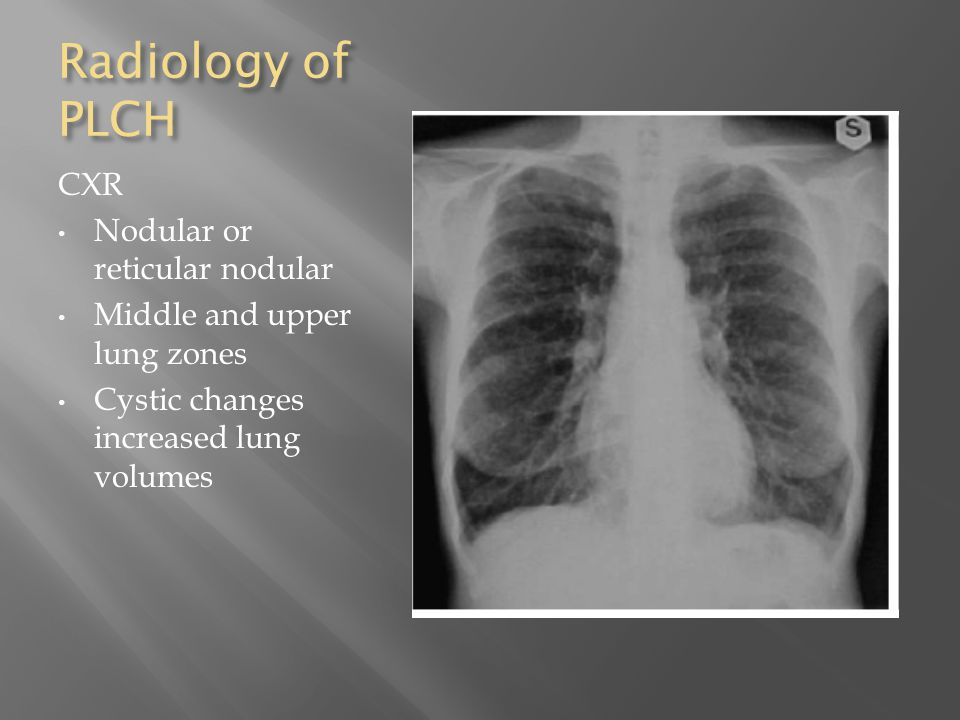 Radiology of PLCH CXR Nodular or reticular nodular Middle and upper lung zones Cystic changes increased lung volumes