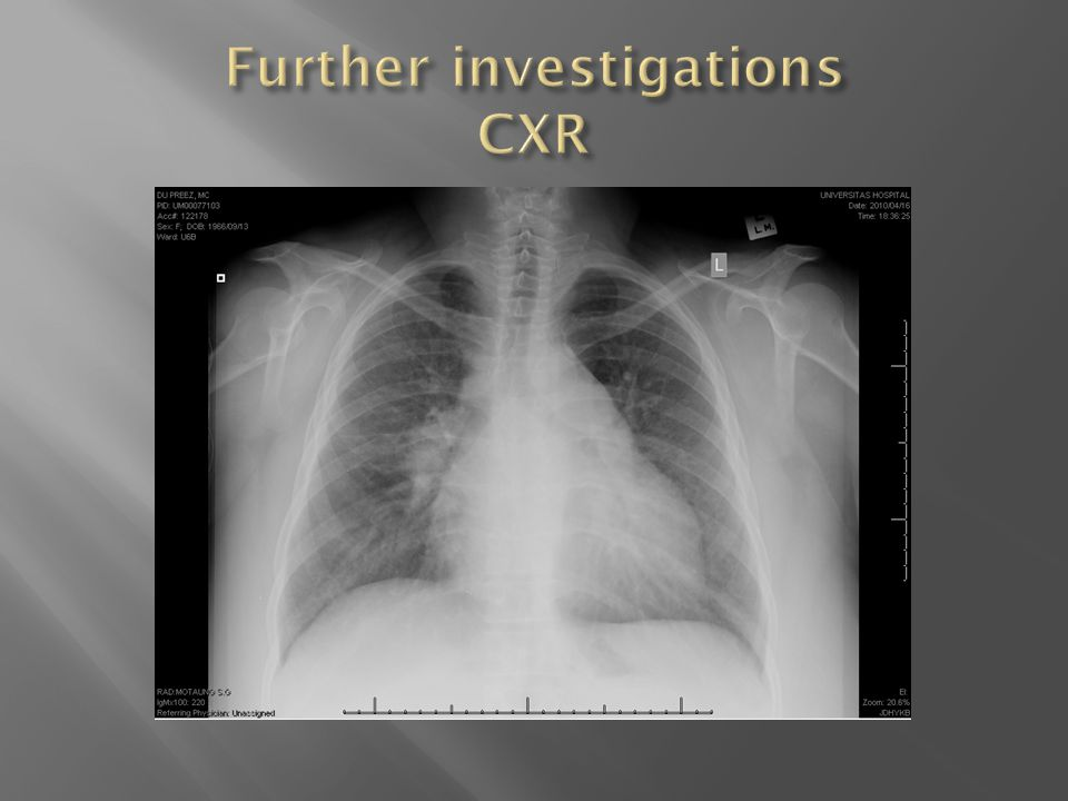 Lung Cancer  Chronic Obstructive airways disease  Interstitial lung diseases