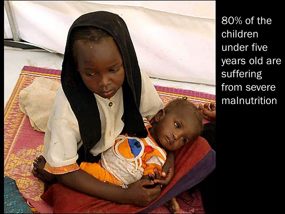 80% of the children under five years old are suffering from severe malnutrition