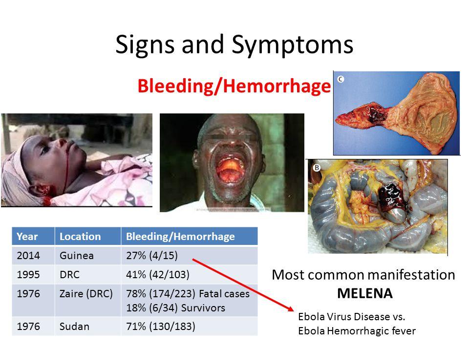 Signs and Symptoms Bleeding/Hemorrhage YearLocationBleeding/Hemorrhage 2014Guinea27% (4/15) 1995DRC41% (42/103) 1976Zaire (DRC)78% (174/223) Fatal cases 18% (6/34) Survivors 1976Sudan71% (130/183) Most common manifestation MELENA Ebola Virus Disease vs.