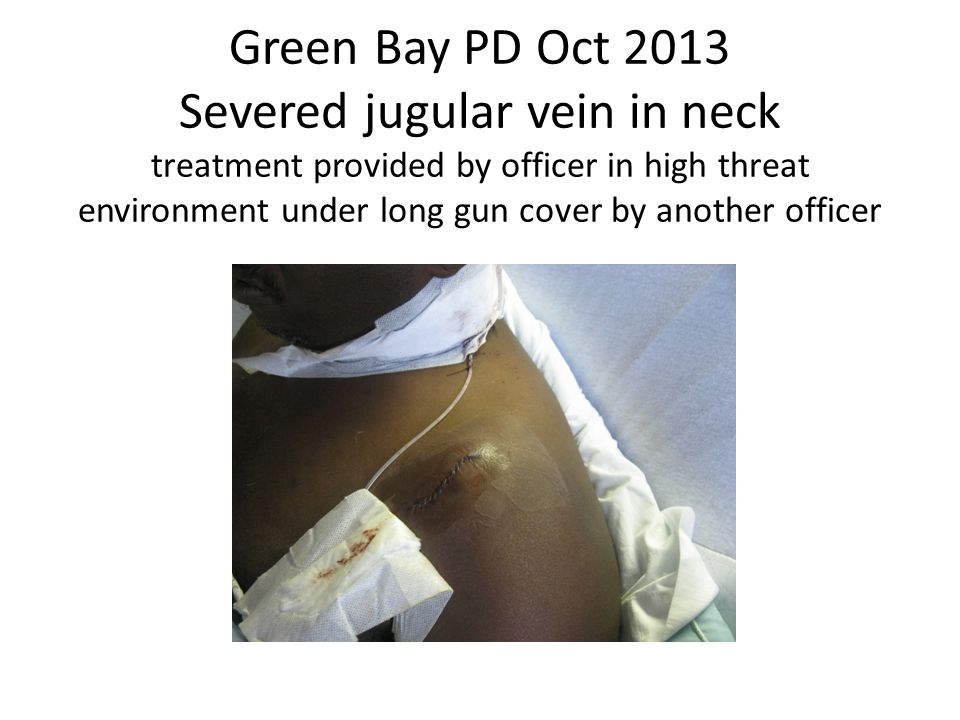 Green Bay PD Oct 2013 Severed jugular vein in neck treatment provided by officer in high threat environment under long gun cover by another officer