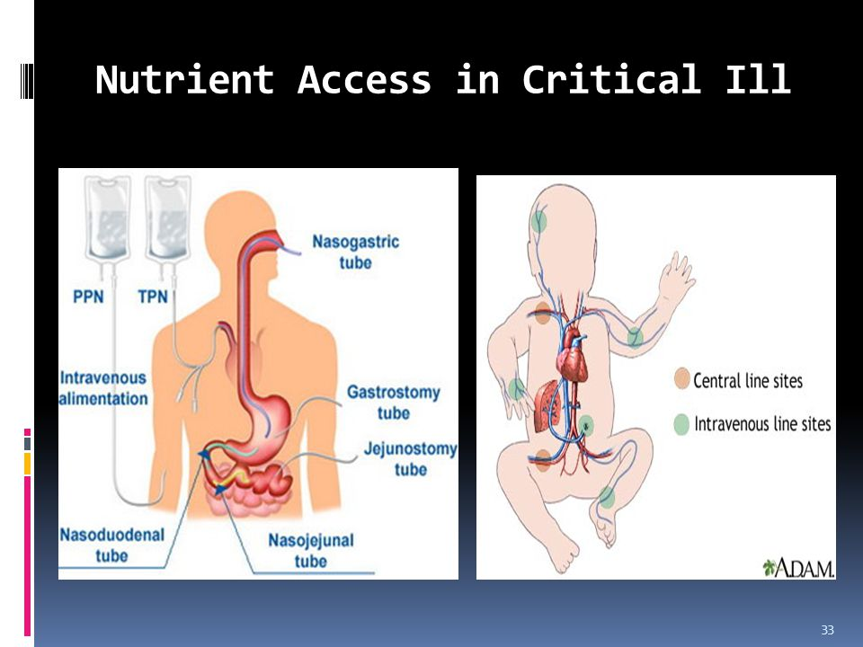 Nutrient Access in Critical Ill 33