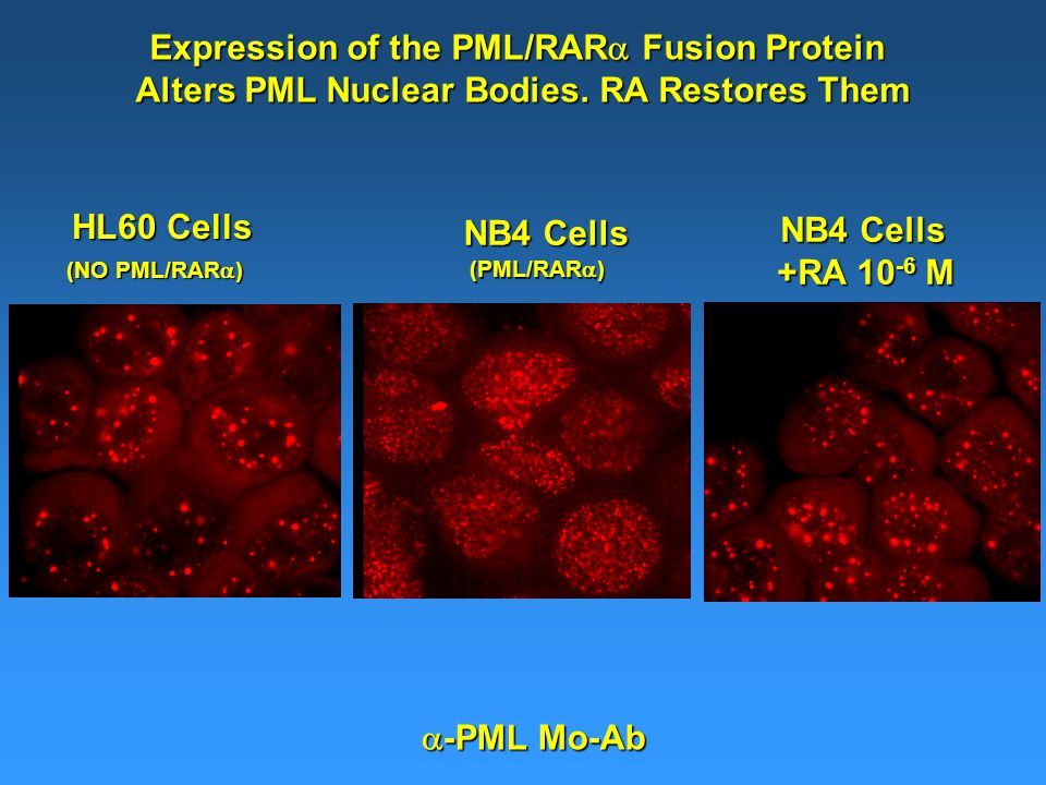  -PML Mo-Ab Expression of the PML/RAR  Fusion Protein Alters PML Nuclear Bodies.