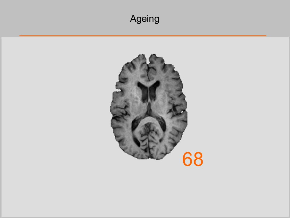 Ageing 68
