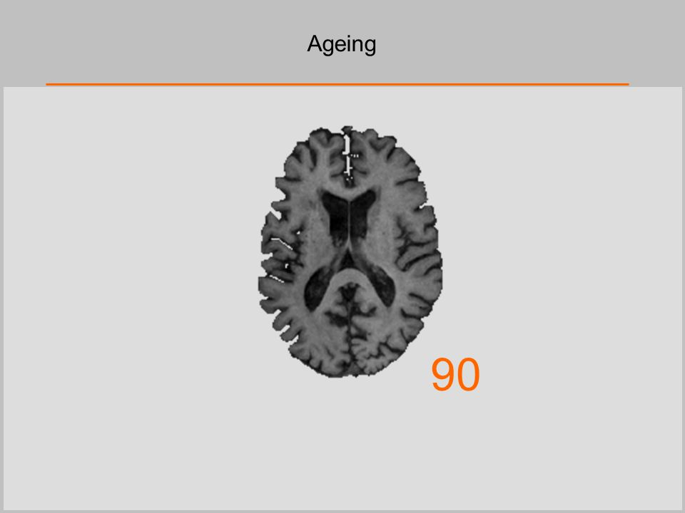 Ageing 90