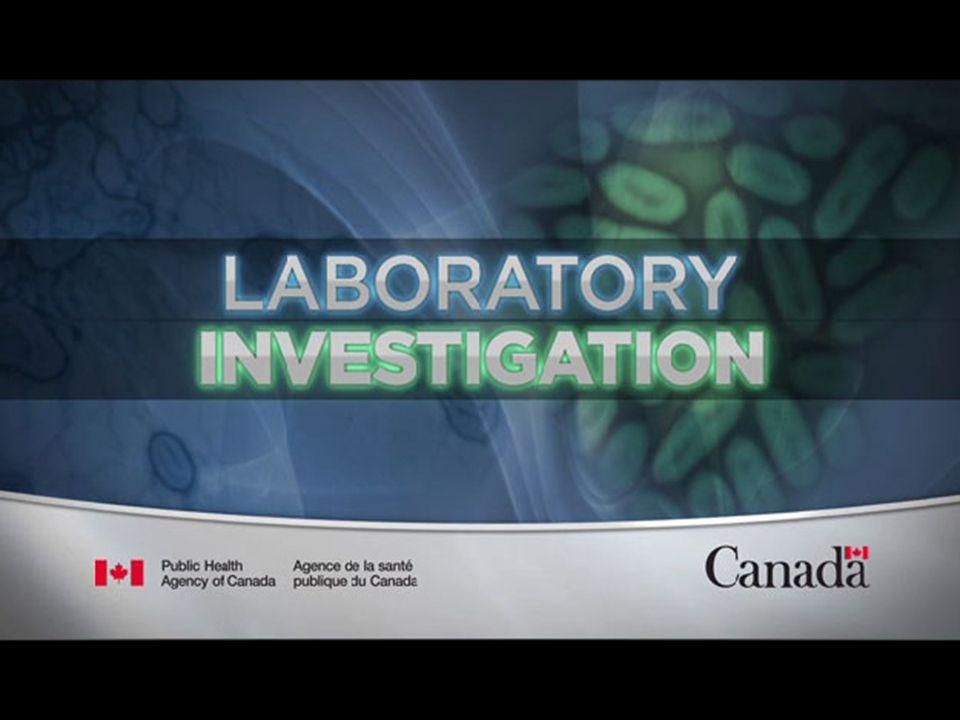 Lab investigations Hb 8.1 Tlc 4.0 Plts 80 MCV 102 Ur 35 Cr 0.65 Na 138 K 4.5 Chl 104 Bicarb 22