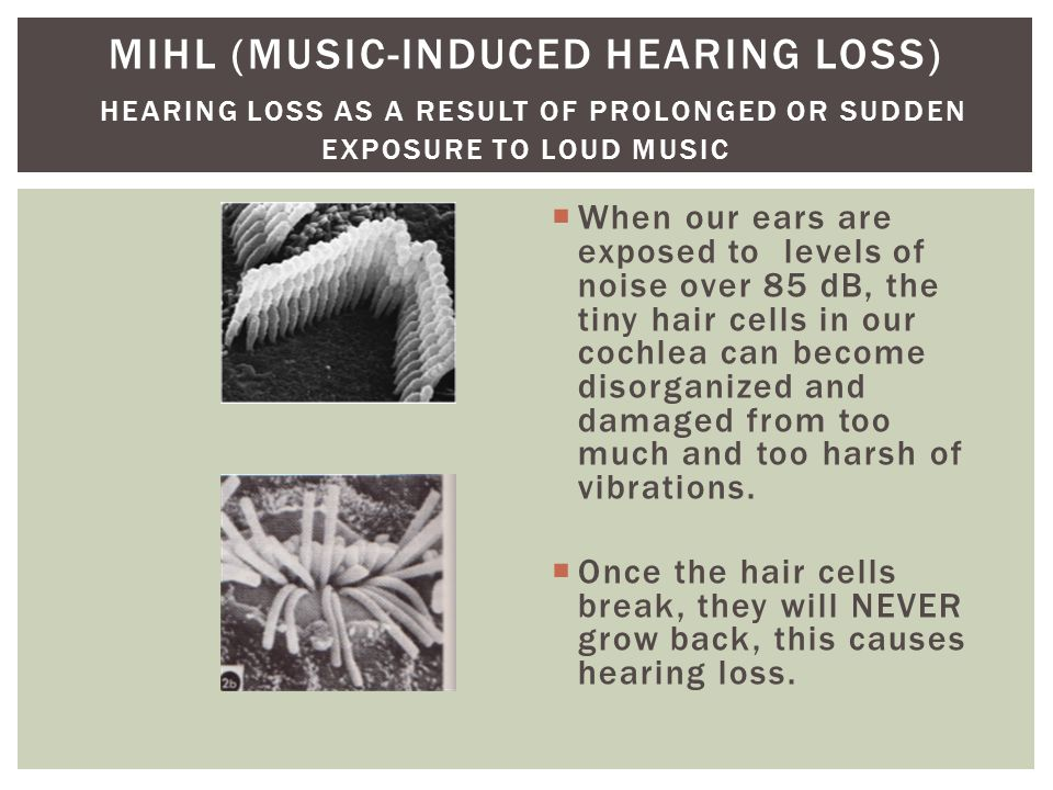  When our ears are exposed to levels of noise over 85 dB, the tiny hair cells in our cochlea can become disorganized and damaged from too much and too harsh of vibrations.