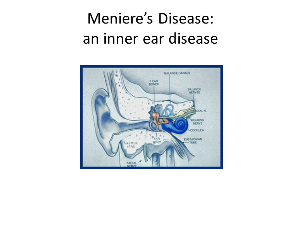 Causes of Meinere's disease Meineres disease has no known cause.