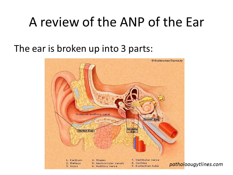 Tinnitus: Ringing in the ears.2 types: Subjective- perceived sounds in the ear by the patient.