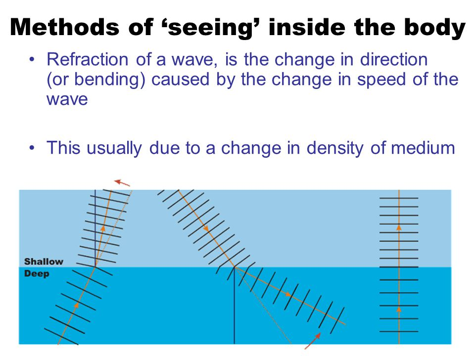 Refraction of a wave, is the change in direction (or bending) caused by the change in speed of the wave This usually due to a change in density of medium