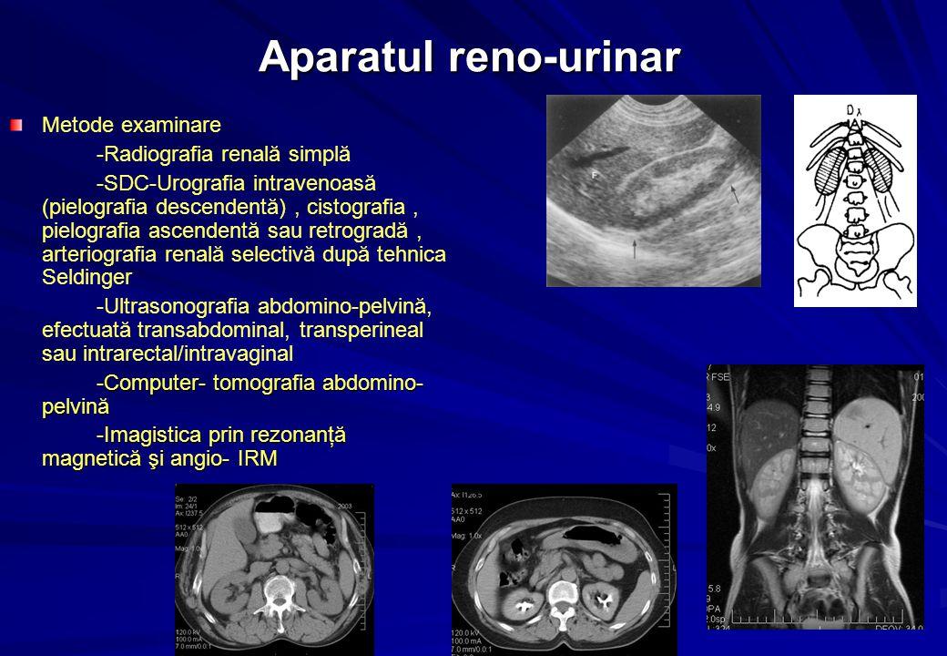 Aparatul reno-urinar Metode examinare -Radiografia renală simplă -SDC-Urografia intravenoasă (pielografia descendentă), cistografia, pielografia ascendentă sau retrogradă, arteriografia renală selectivă după tehnica Seldinger -Ultrasonografia abdomino-pelvină, efectuată transabdominal, transperineal sau intrarectal/intravaginal -Computer- tomografia abdomino- pelvină -Imagistica prin rezonanţă magnetică şi angio- IRM