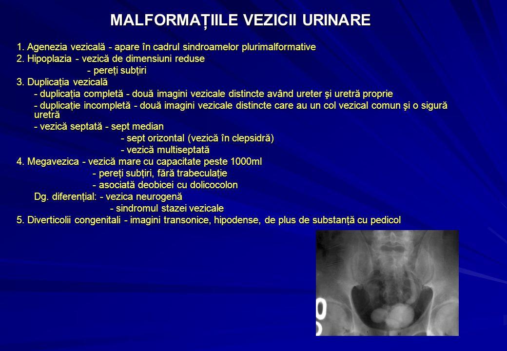 MALFORMAŢIILE VEZICII URINARE 1.