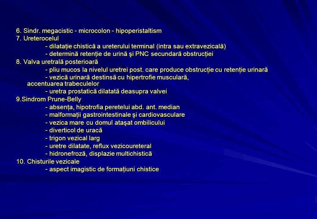 6. Sindr. megacistic - microcolon - hipoperistaltism 7.