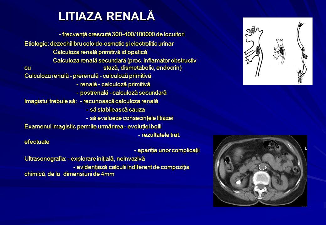 LITIAZA RENALĂ - frecvenţă crescută 300-400/100000 de locuitori Etiologie: dezechilibru coloido-osmotic şi electrolitic urinar Calculoza renală primitivă idiopatică Calculoza renală primitivă idiopatică Calculoza renală secundară (proc.