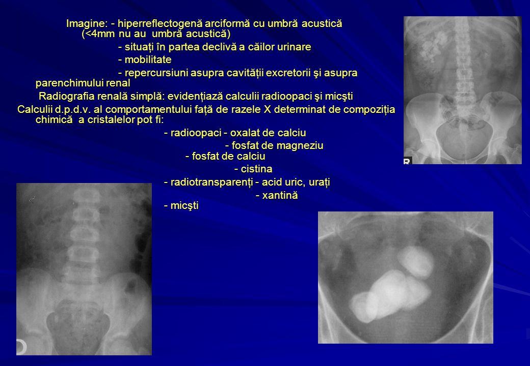 Imagine: - hiperreflectogenă arciformă cu umbră acustică (<4mm nu au umbră acustică) - situaţi în partea declivă a căilor urinare - situaţi în partea declivă a căilor urinare - mobilitate - mobilitate - repercursiuni asupra cavităţii excretorii şi asupra parenchimului renal - repercursiuni asupra cavităţii excretorii şi asupra parenchimului renal Radiografia renală simplă: evidenţiază calculii radioopaci şi micşti Radiografia renală simplă: evidenţiază calculii radioopaci şi micşti Calculii d.p.d.v.
