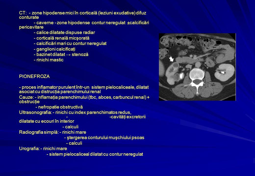 CT: - zone hipodense mici în corticală (leziuni exudative) difuz conturate - caverne - zone hipodense contur neregulat ±calcificări pericavitare - calice dilatate dispuse radiar - corticală renală micşorată - calcificări mari cu contur neregulat - ganglioni calcificaţi - bazinet dilatat → stenoză - rinichi mastic PIONEFROZA - proces inflamator purulent într-un sistem pielocaliceale, dilatat asociat cu distrucţia parenchimului renal Cauze: - inflamaţia parenchimului (tbc, abces, carbuncul renal) + obstrucţie - nefropatie obstructivă Ultrasonografia: - rinichi cu index parenchimatos redus, - -cavităţi excretorii dilatate cu ecouri în interior - calculi Radiografia simplă: - rinichi mare - ştergerea conturului muşchiului psoas - calculi Urografia: - rinichi mare - sistem pielocaliceal dilatat cu contur neregulat