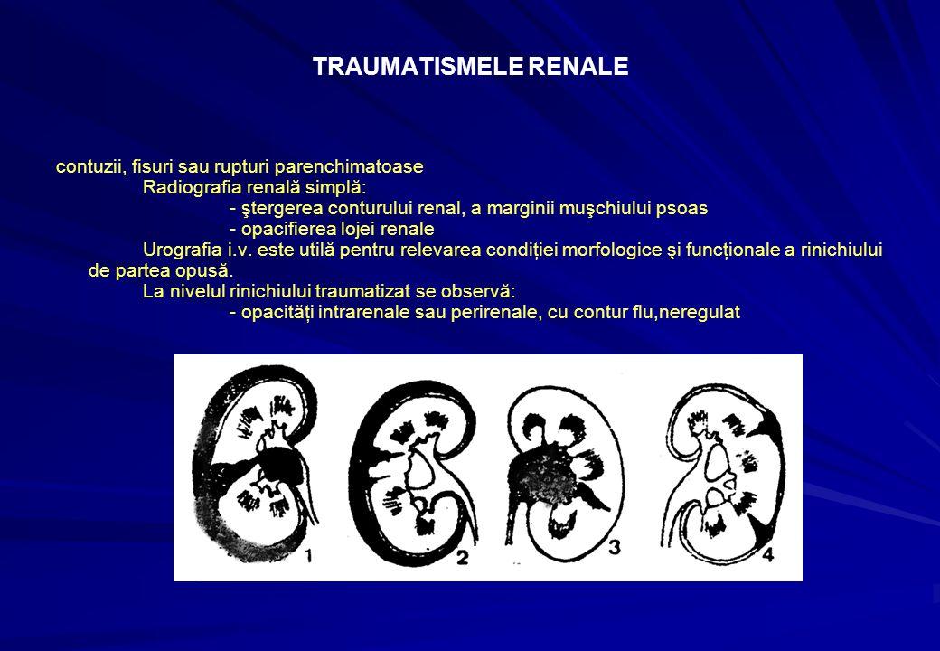 TRAUMATISMELE RENALE contuzii, fisuri sau rupturi parenchimatoase Radiografia renală simplă: - ştergerea conturului renal, a marginii muşchiului psoas - opacifierea lojei renale Urografia i.v.