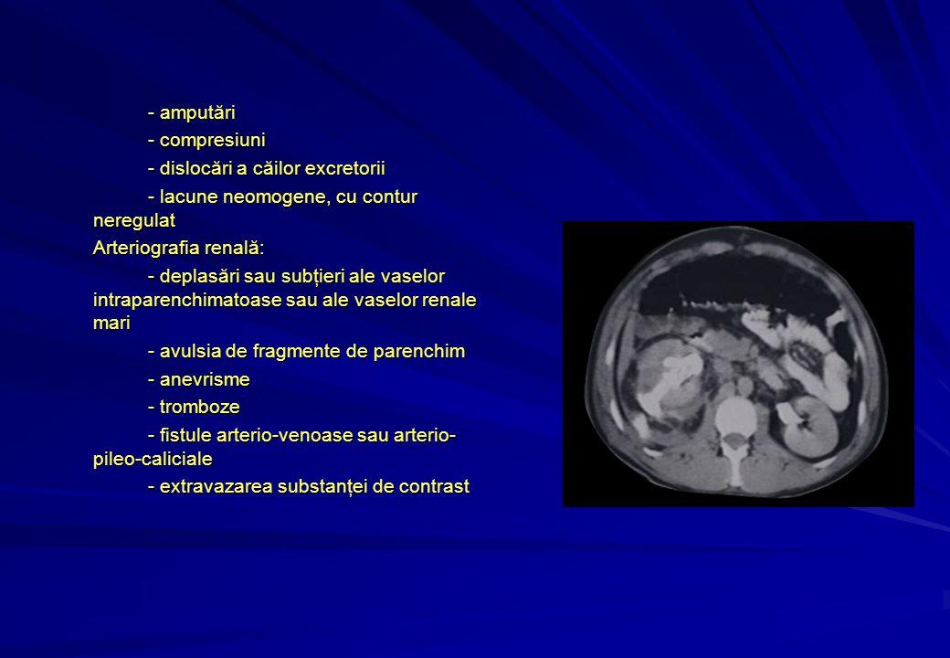 - amputări - compresiuni - dislocări a căilor excretorii - lacune neomogene, cu contur neregulat Arteriografia renală: - deplasări sau subţieri ale vaselor intraparenchimatoase sau ale vaselor renale mari - avulsia de fragmente de parenchim - anevrisme - tromboze - fistule arterio-venoase sau arterio- pileo-caliciale - extravazarea substanţei de contrast