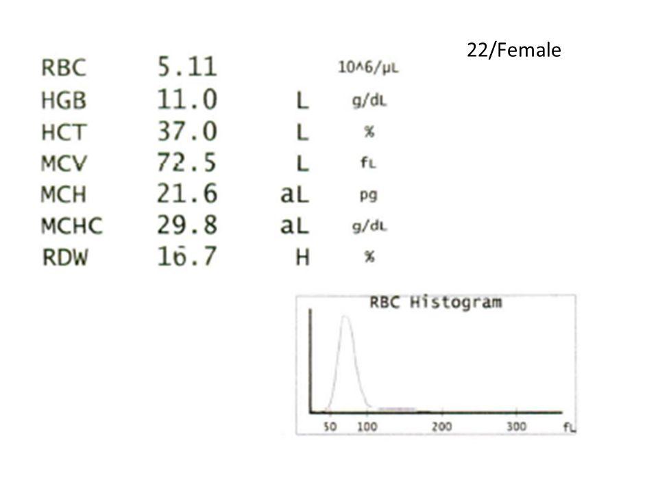 22/Female