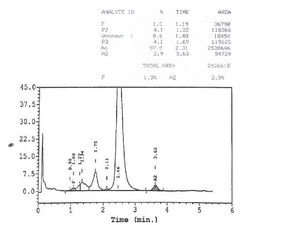 Borderline HbA2 levels: Silent carrier of thalassemia β thal with superadded IDA Macrocytosis αβ thalassemia
