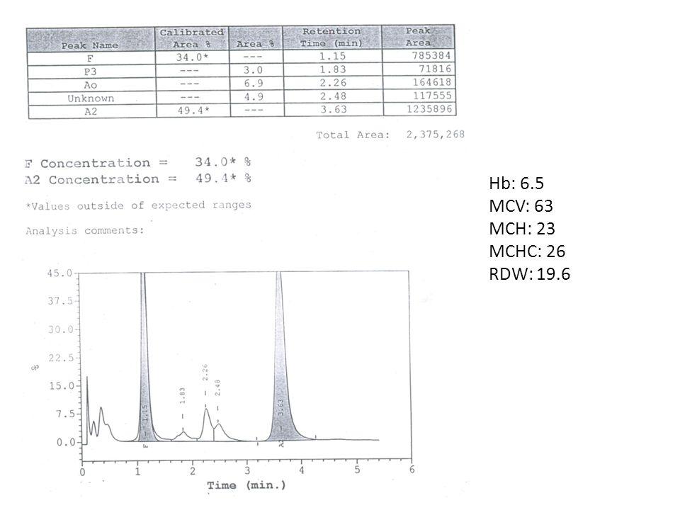 Hb: 6.5 MCV: 63 MCH: 23 MCHC: 26 RDW: 19.6