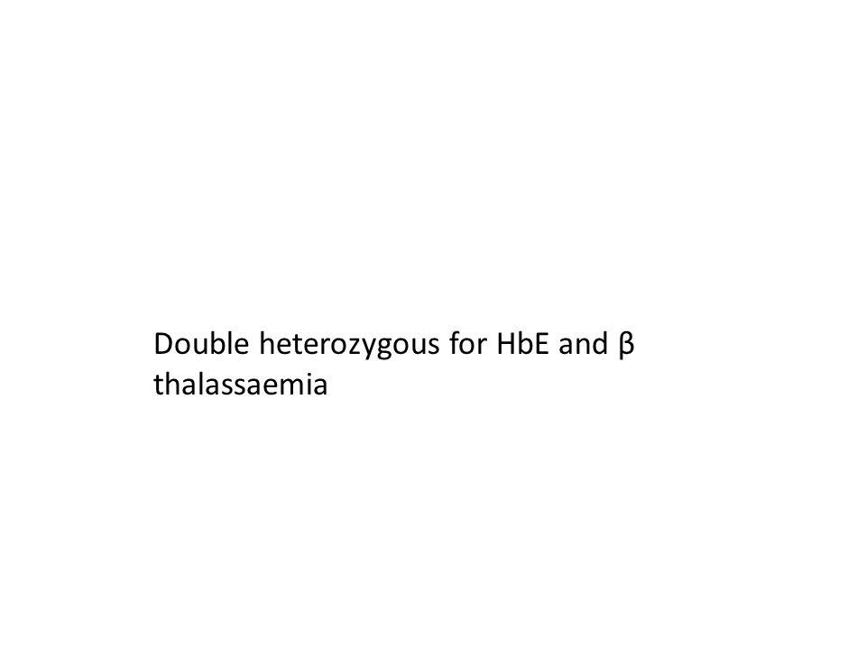 Double heterozygous for HbE and β thalassaemia