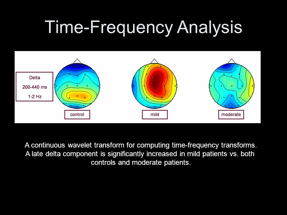 Time-Frequency Analysis A continuous wavelet transform for computing time-frequency transforms. A late delta component is significantly increased in m