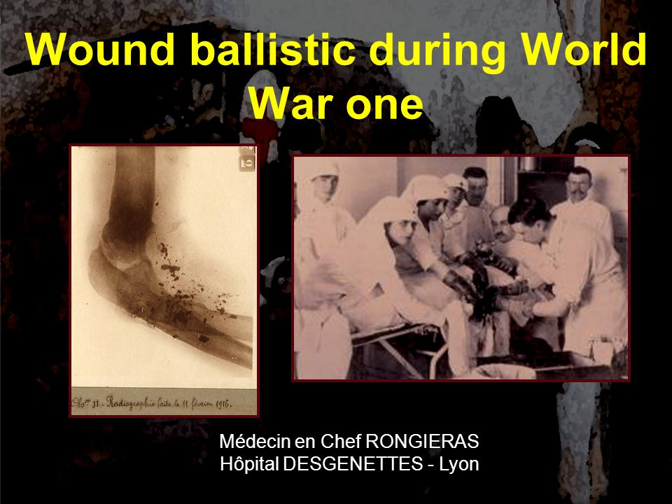 Wound ballistic during World War one Médecin en Chef RONGIERAS Hôpital DESGENETTES - Lyon