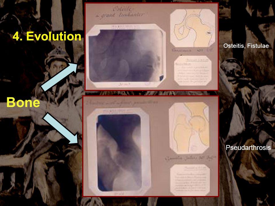 Sauver et soigner à VERDUN 4-5 novembre 2006 4. Evolution Bone Osteitis, Fistulae Pseudarthrosis