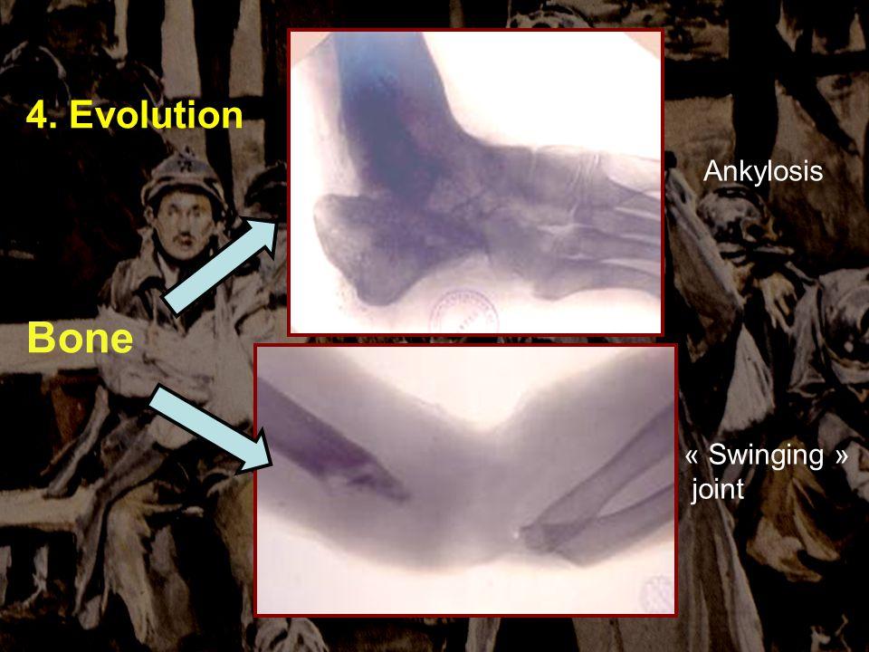 Sauver et soigner à VERDUN 4-5 novembre 2006 4. Evolution Bone « Swinging » joint Ankylosis
