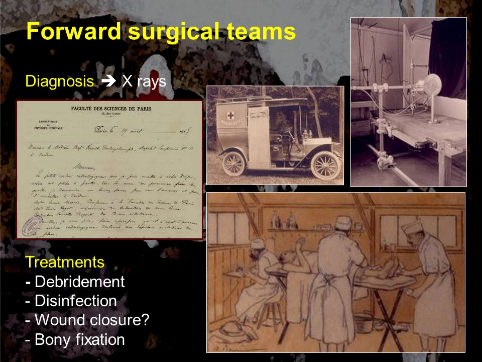 Forward surgical teams Diagnosis  X rays Treatments - Debridement - Disinfection - Wound closure.