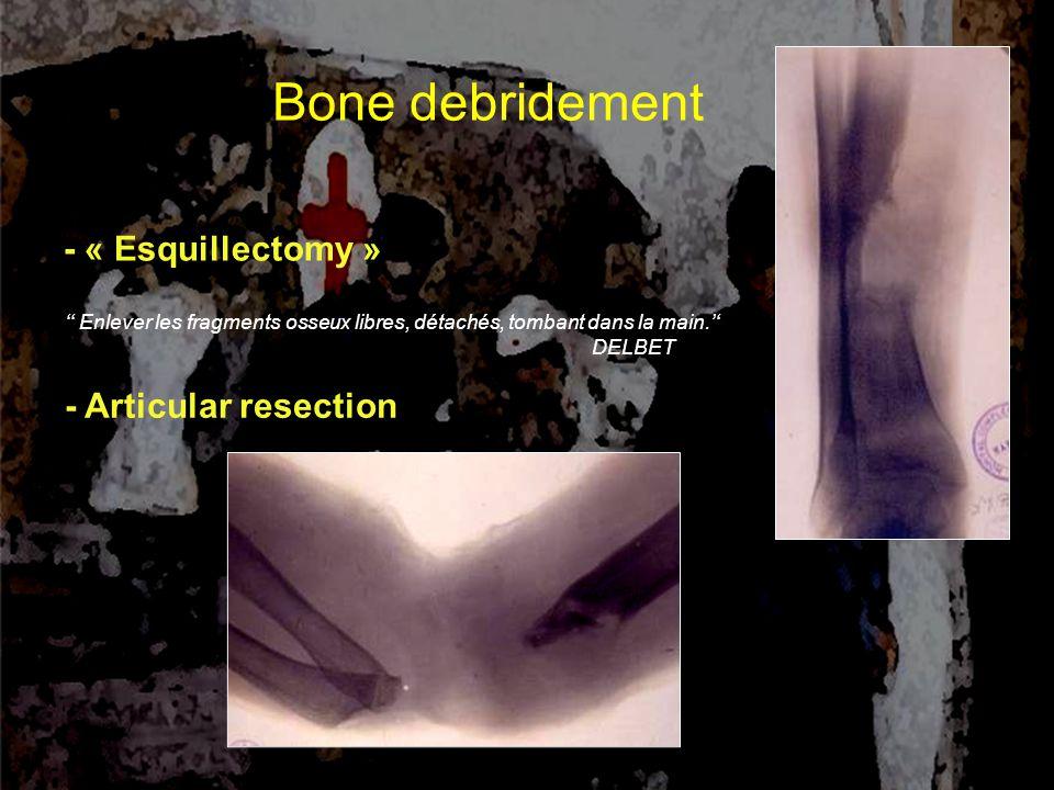 Bone debridement - « Esquillectomy » - Articular resection '' Enlever les fragments osseux libres, détachés, tombant dans la main.'' DELBET