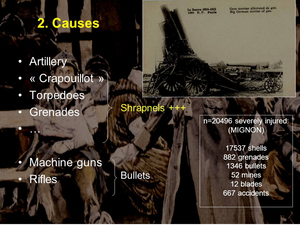 Artillery « Crapouillot » Torpedoes Grenades … Machine guns Rifles 2. Causes Shrapnels +++ Bullets n=20496 severely injured: (MIGNON) 17537 shells 882