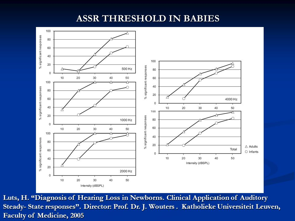 "ASSR THRESHOLD IN BABIES Luts, H. ""Diagnosis of Hearing Loss in Newborns. Clinical Application of Auditory Steady- State responses"". Director: Prof. D"