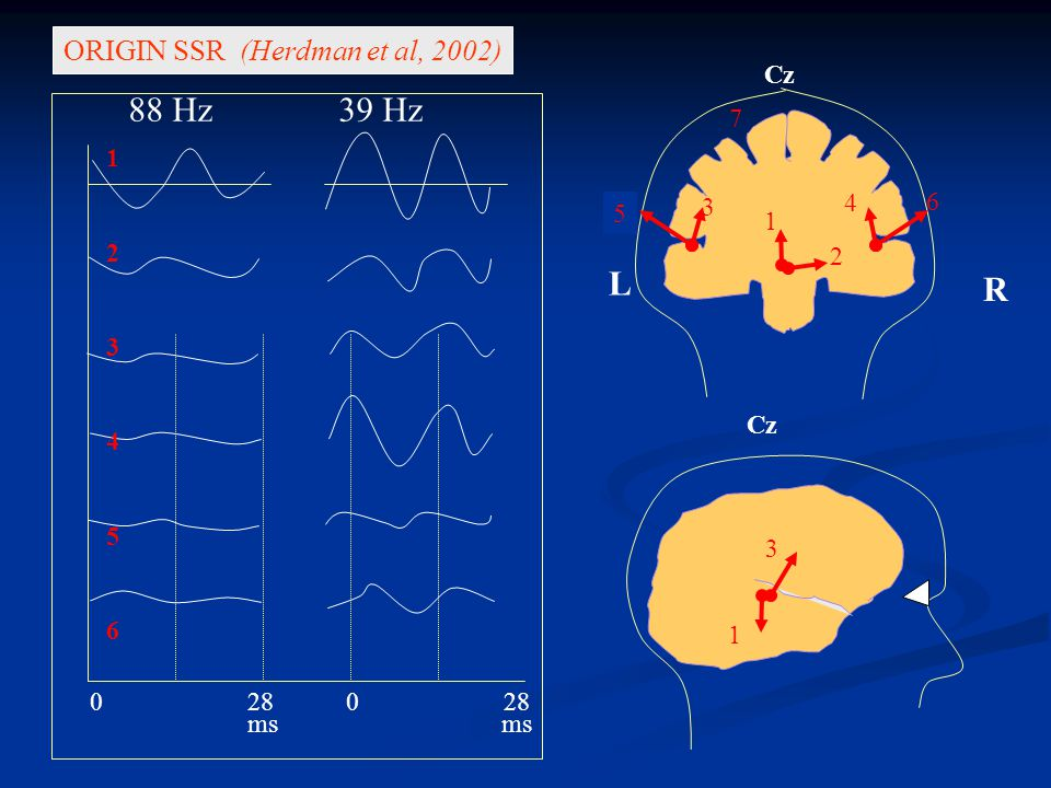 AUDITORY STEADY STATE RESPONSE (ASSR) Can be recorded in neonates and children Can be recorded in neonates and children Are evoked by frequency –specific tonal stimuli Are evoked by frequency –specific tonal stimuli Correlate with elevation in the hearing thresholds Correlate with elevation in the hearing thresholds Can be objectively evaluated Can be objectively evaluated Are used to estimate an audiogram Are used to estimate an audiogram