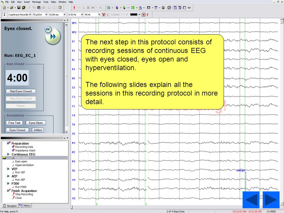 The next step in this protocol consists of recording sessions of continuous EEG with eyes closed, eyes open and hyperventilation.